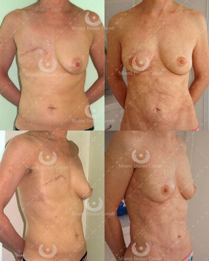 reconstrucción de senos mastectomía miami