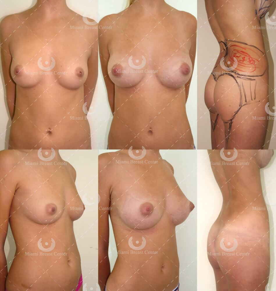 natural breast augmentation fat
