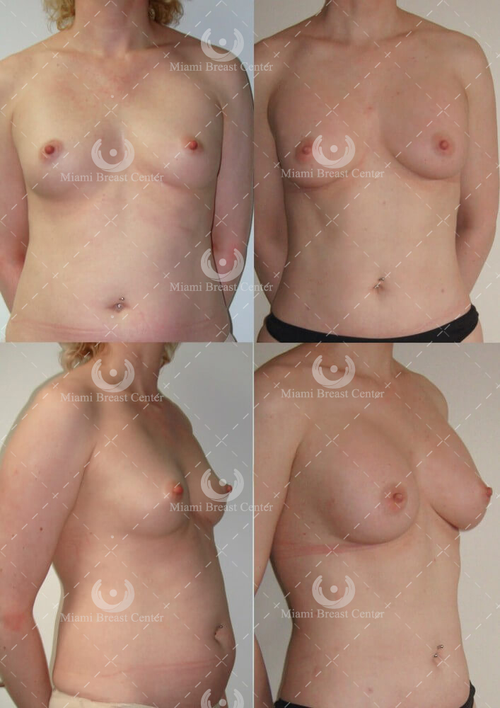Breast Augmentation w/Fat Transfer