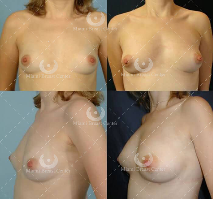 fat transfer breast augmentation gallery