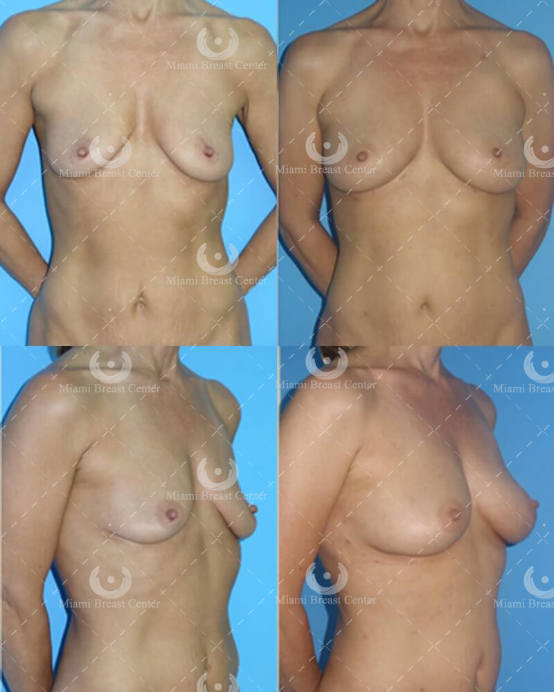 Breast augmentation with fat transfer raft