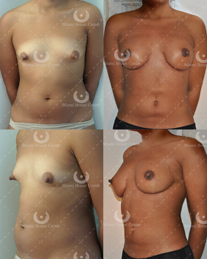 breast augmentation with fat transfer