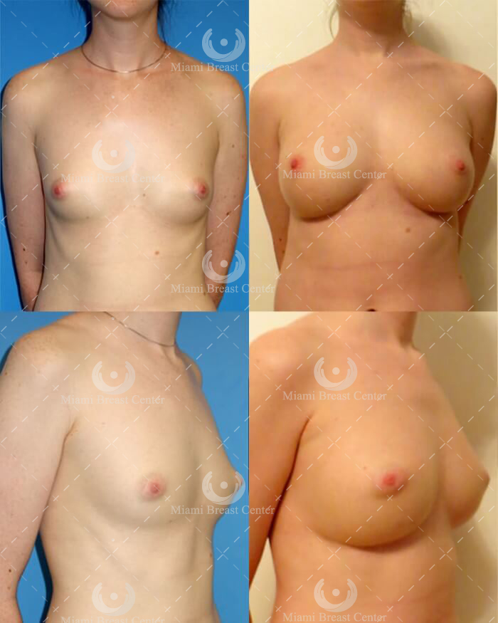 fat transfer to breast miami