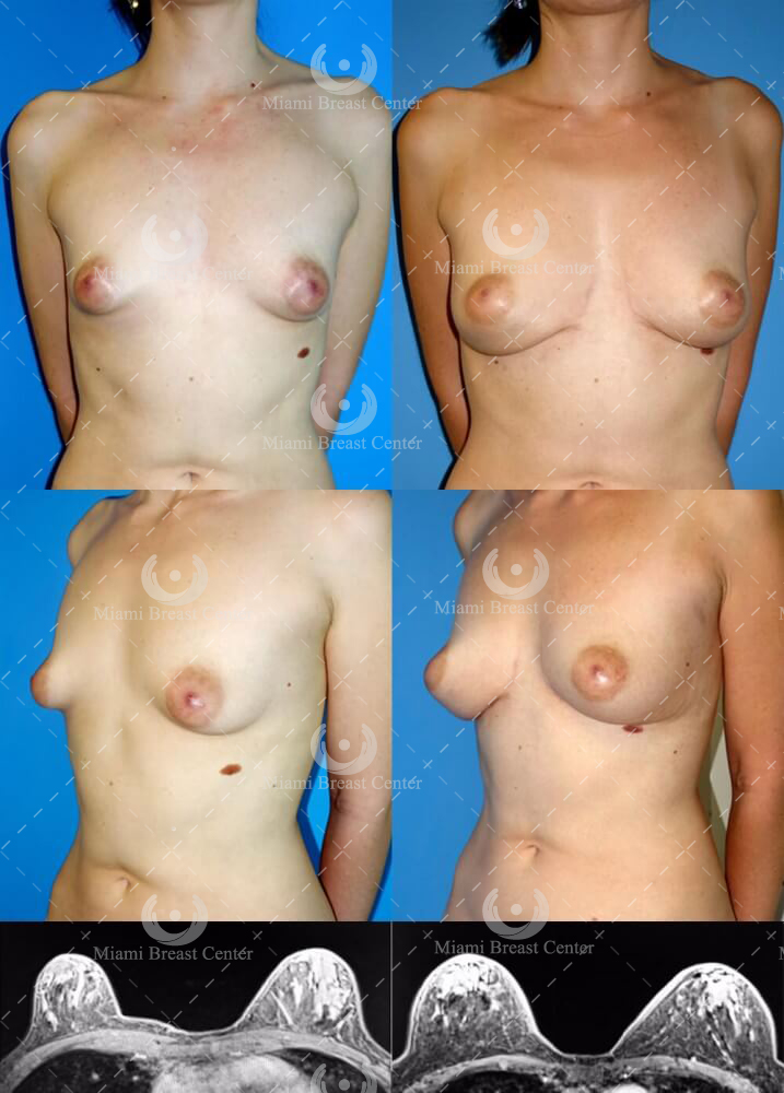 aumento de seno natural con transferencia de grasa