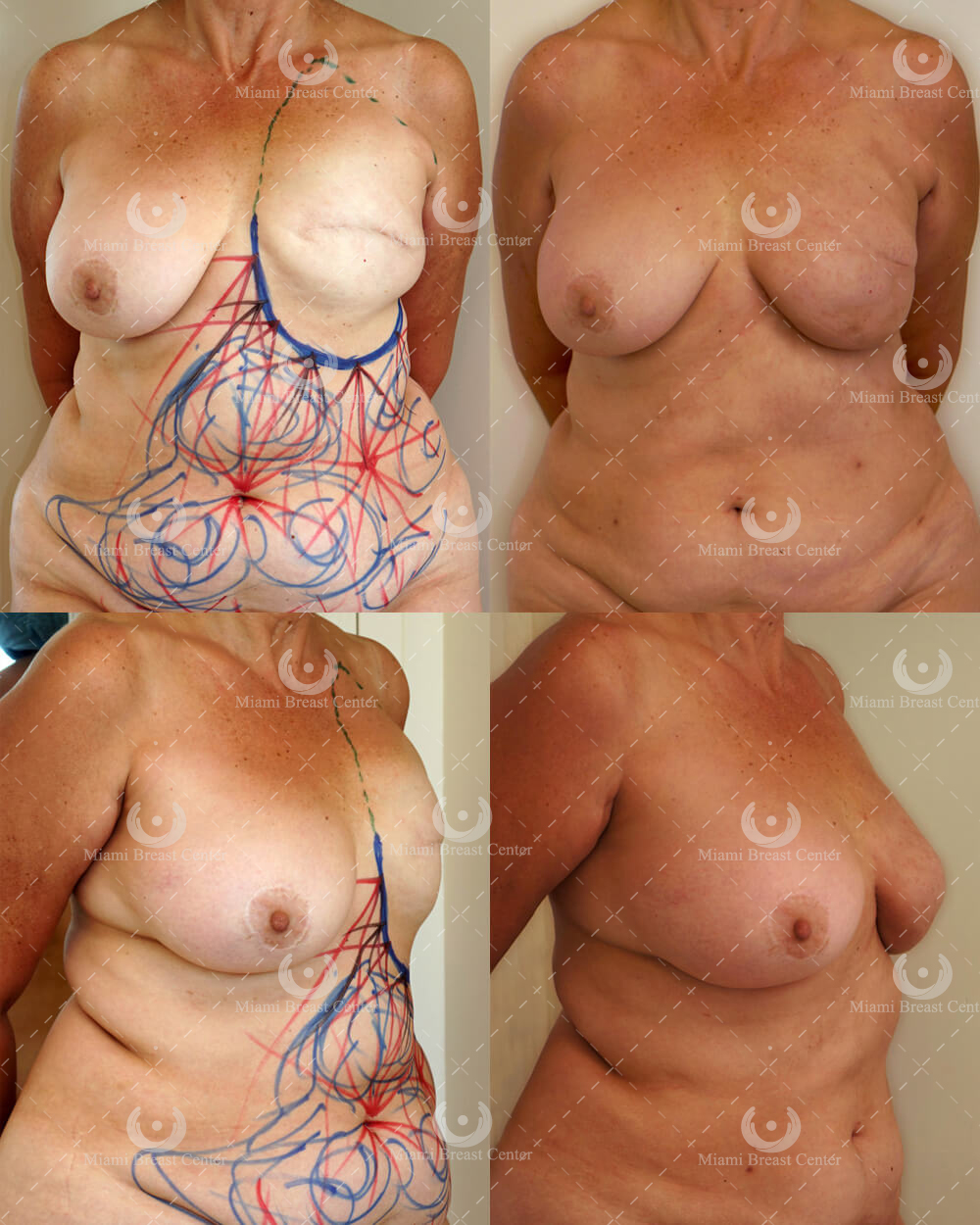 mastectomy with fat transfer to the breast