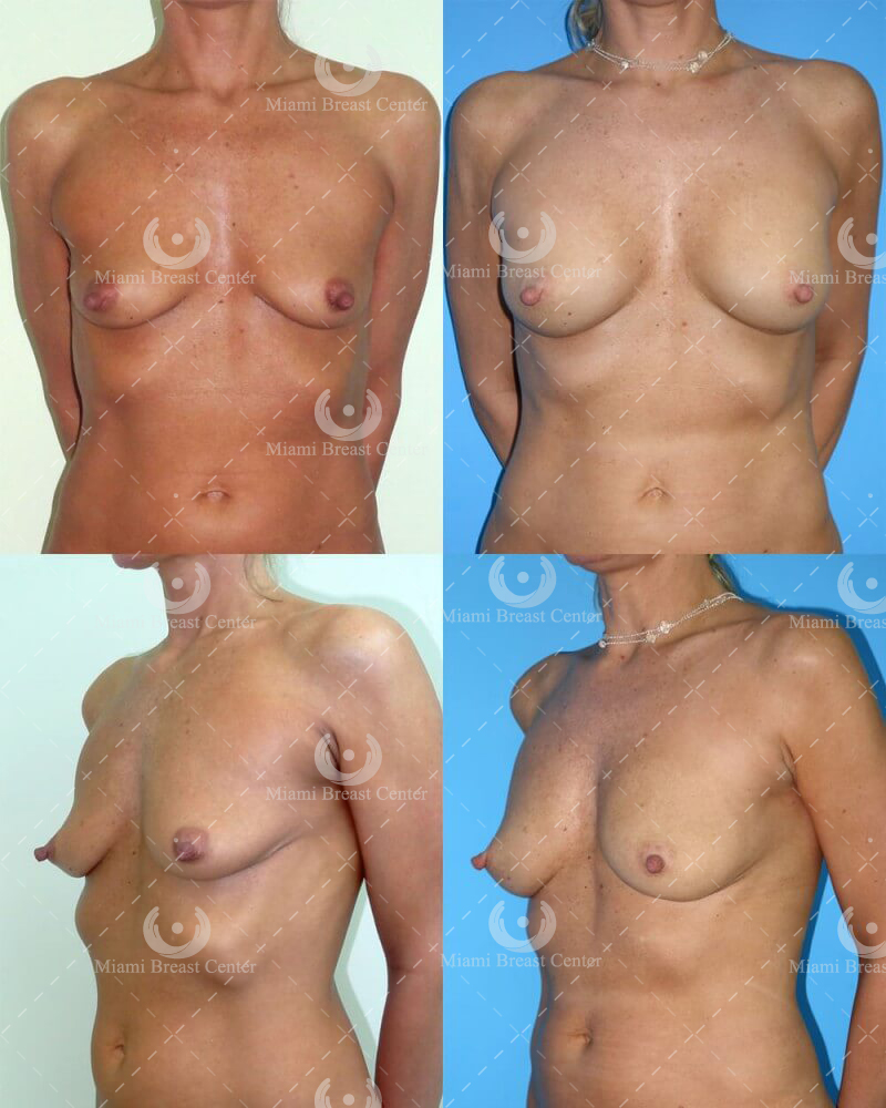 fat transfer to breasts before and after