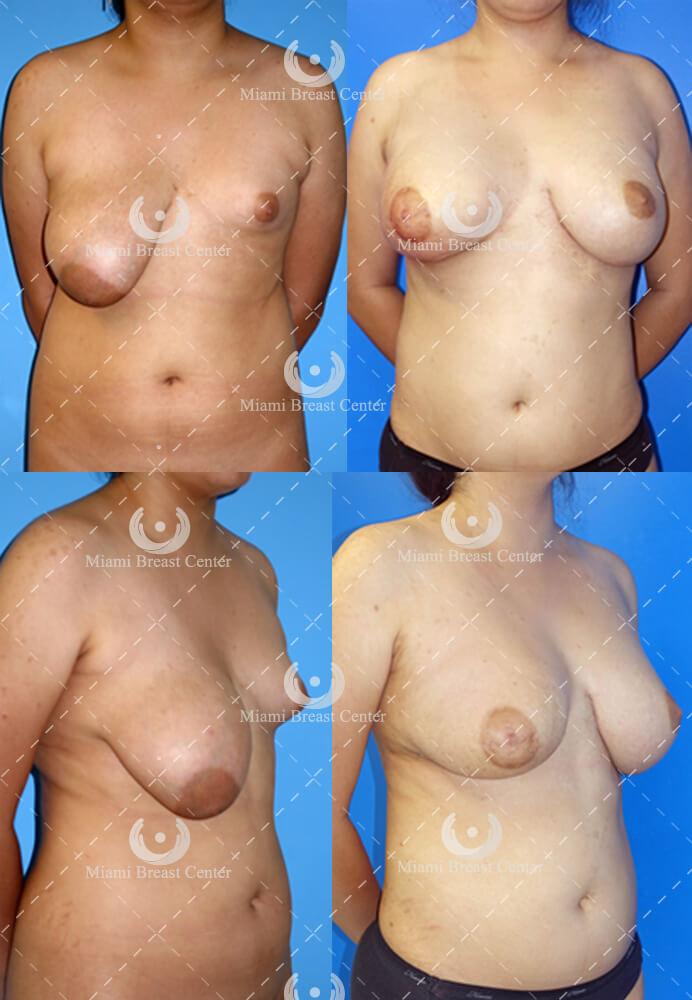 Breast lift incisions