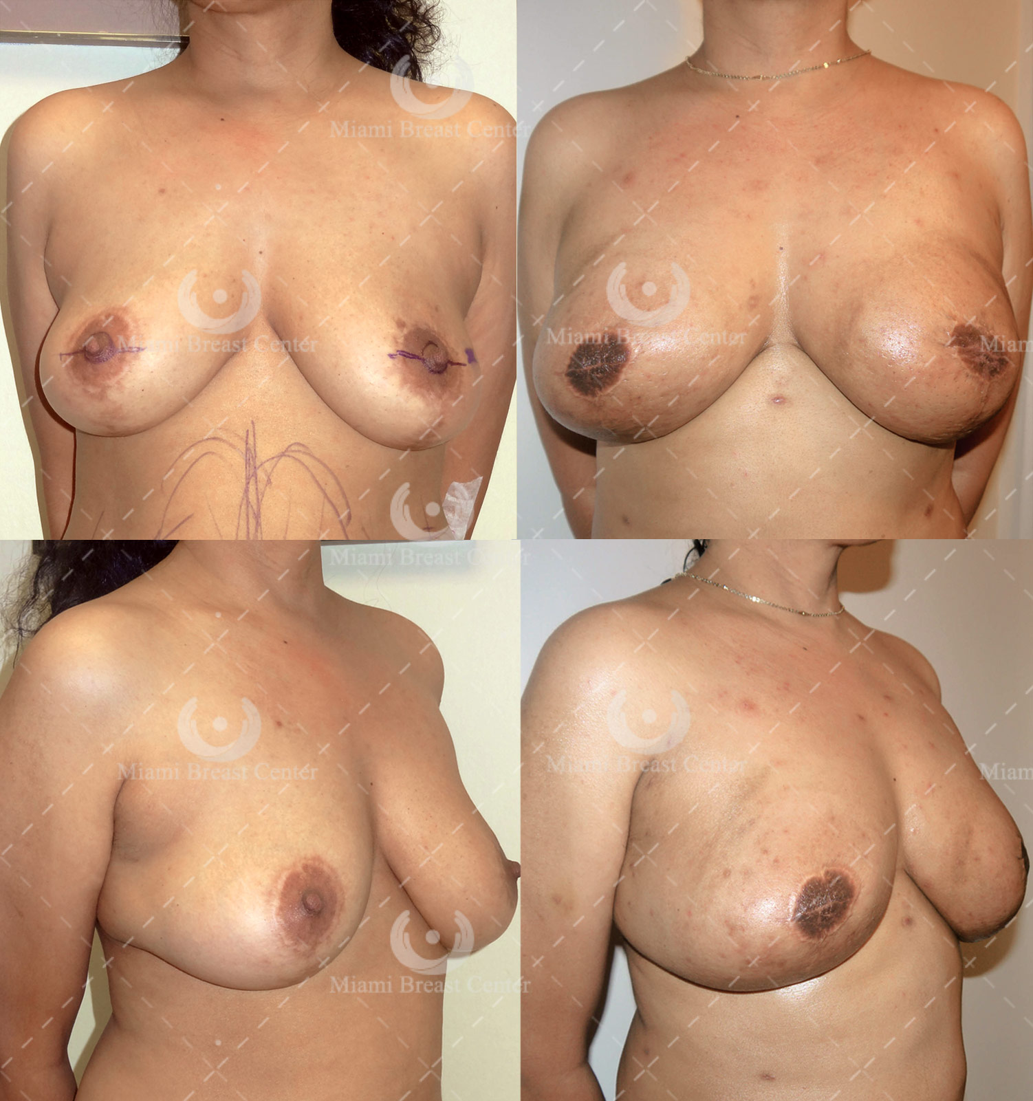 prophylactic breast reconstruction pictures
