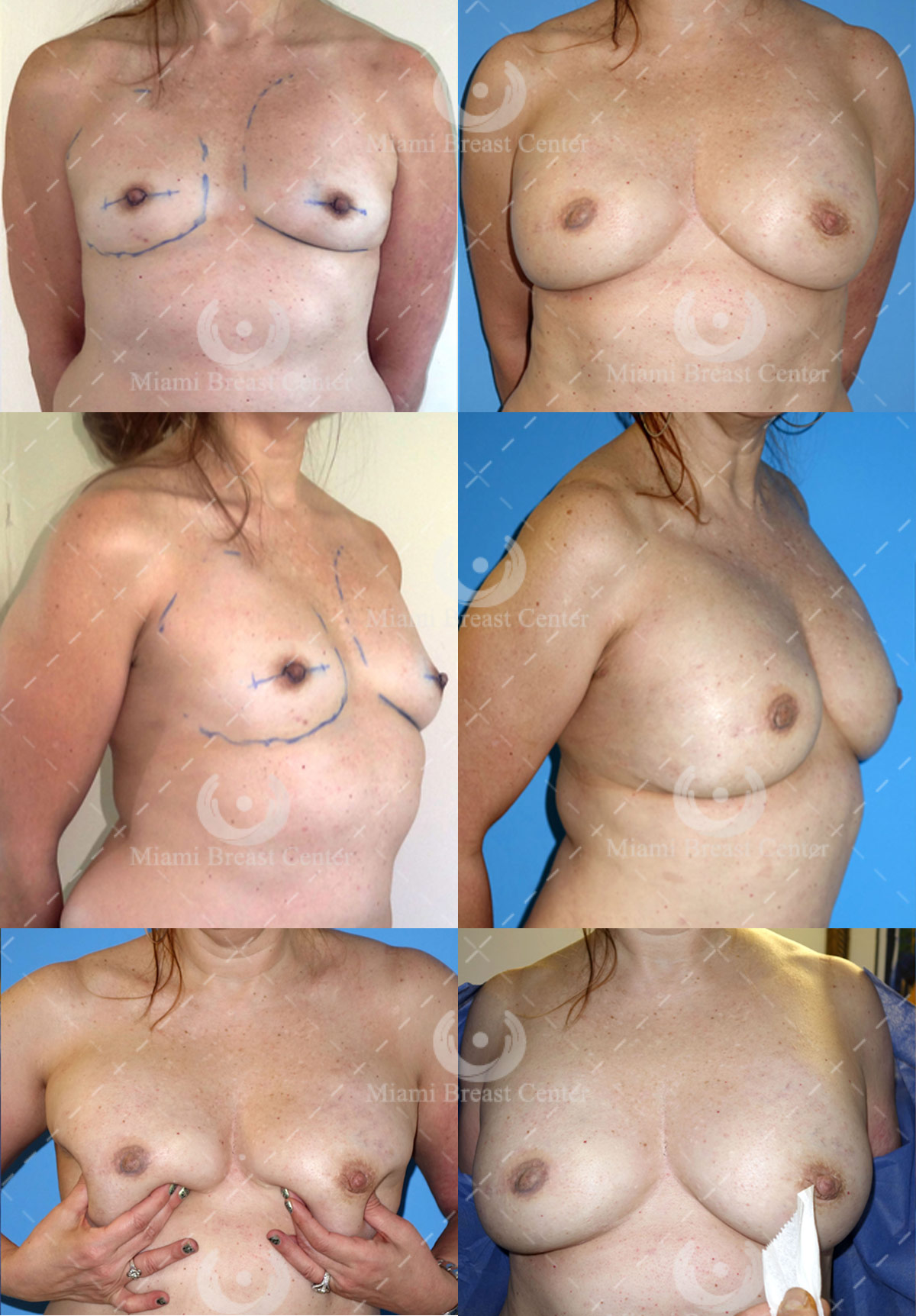 immediate breast reconstruction